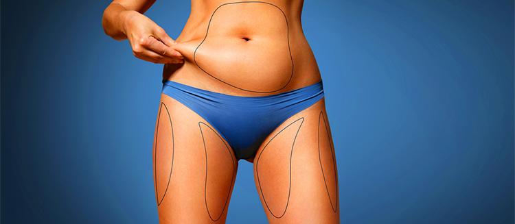 Как можно усовершенствовать проблемные зоны на теле