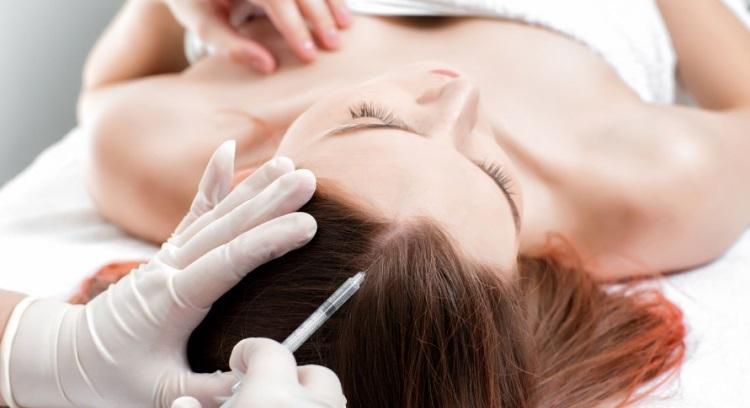 Мезотетерапия от выпадения волос