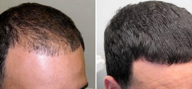 Результат косметологических процедур от выпадения волос