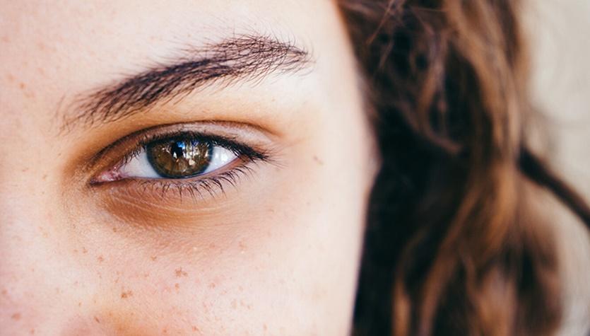 Темные крги под глазами